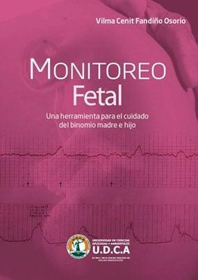 Monitoreo Fetal: Una Herramienta Para El Cuidado Del Binomio Madre - Hijo